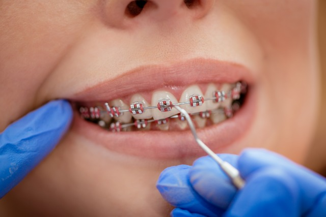 when your child may need braces