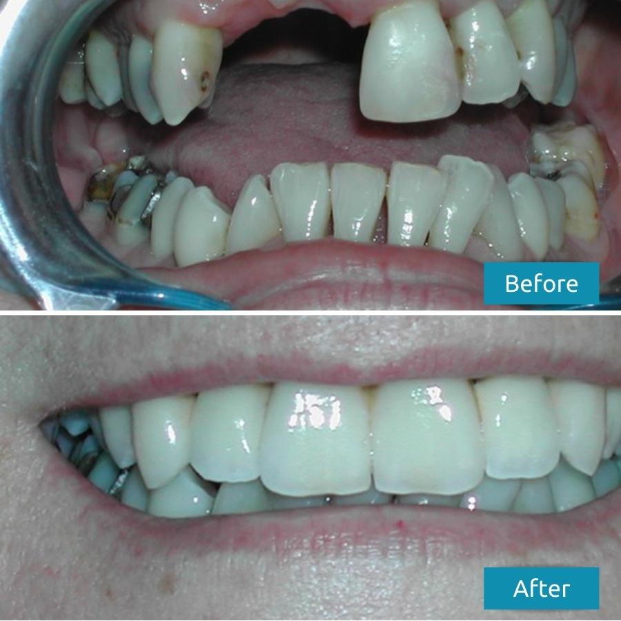 Dental Bridges Before After Case Study - Savina Dental Clinics Malta & Gozo