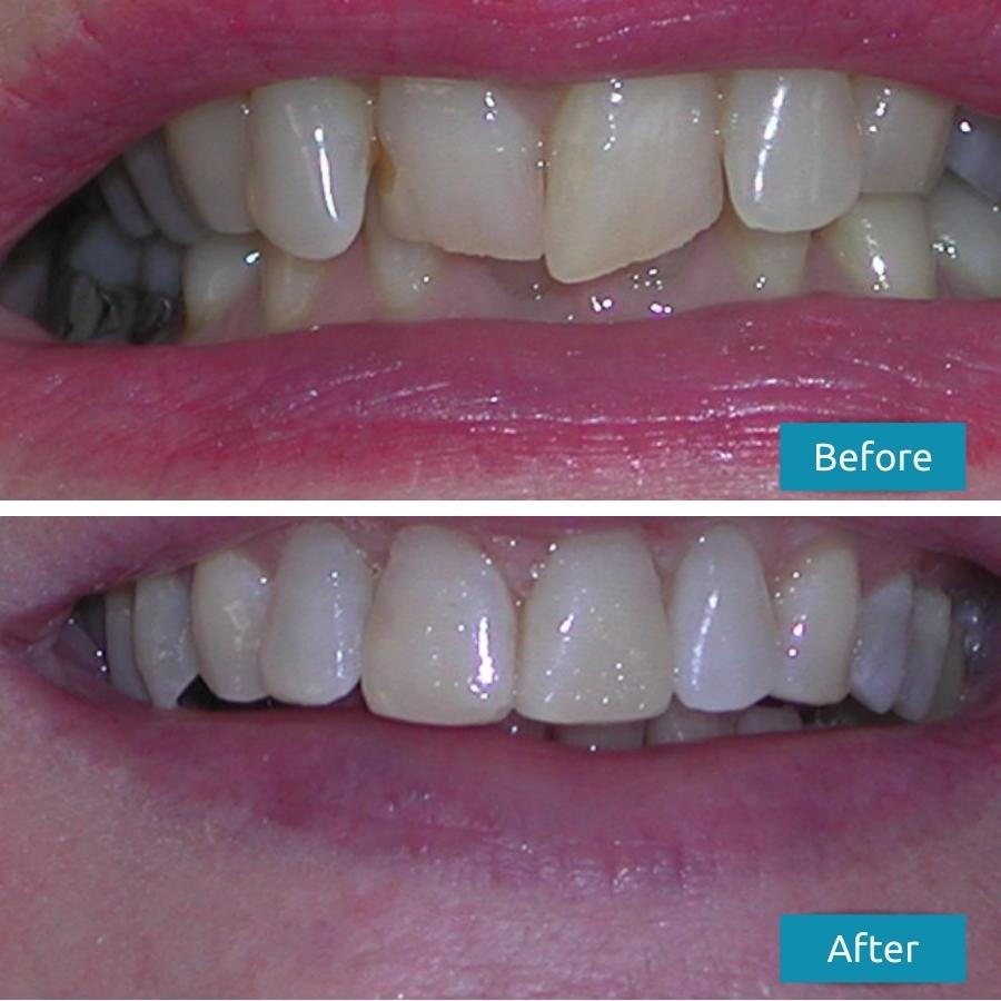 Invisalign Malta Before & After Treatment Pictures - Savina Dental Clinics Malta & Gozo
