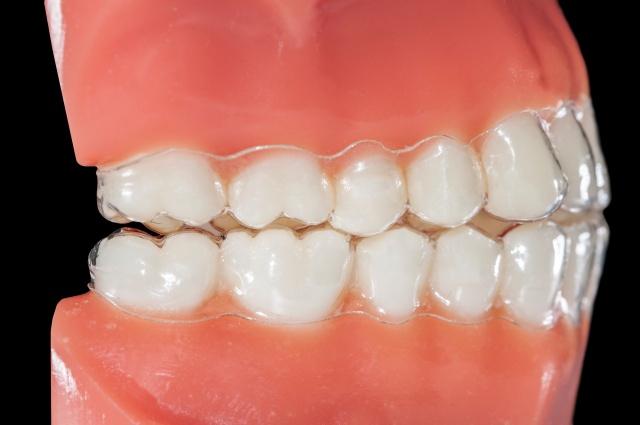 Invisalign Treatment process - Savina dental clinics malta and gozo